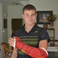 Radnom funny picture tags: iron-man broken-arm cast painted awesome